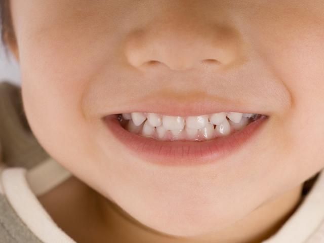 成長期だからできる、歯の矯正