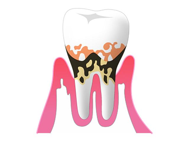 30歳を過ぎたら、歯周病に要注意